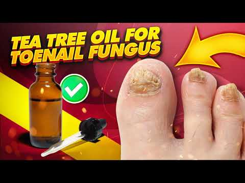 The DANGER  with using TEA TREE OIL FOR TOENAIL FUNGUS: Avoid Hurting Youself.