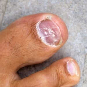 Toenail Fungus Treatment - Home Remedies For Toenail Fungus Know to Work Quickly