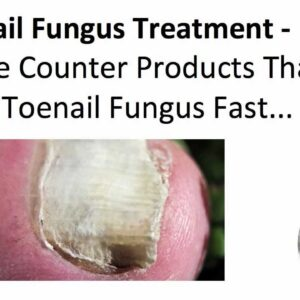Toenail Fungus Treatment - Over the Counter Products That Treat Toenail Fungus Fast