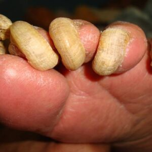 Home Remedies For Toenail Fungus That Work – CRUSH Nail Fungus Naturally