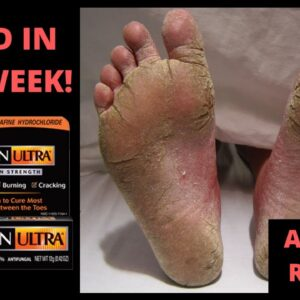 How To Cure Athlete's Foot Fast In 1 Week!  - Toe Fungus Journey