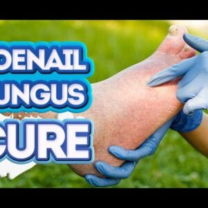 How to Cure Toenail Fungus Fast: 3 Best-Ever Strategies