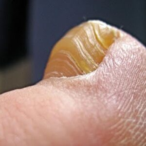 How to Cure Toenail Fungus Fast & Naturally at Home