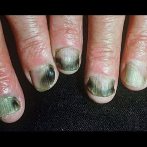 How to Get Rid of Fingernail Fungus Fast & Naturally at Home