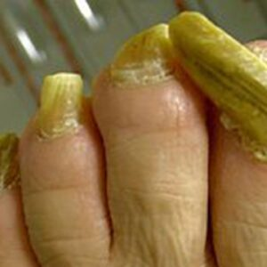 How to Get Rid of Toenail Fungus in a Day (Watch till the end)
