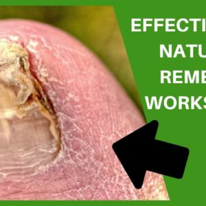 Tea Tree Oil for Toenail Fungus - Toe Fungus Journey
