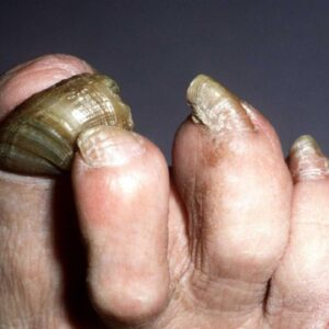 Toenail Fungus Cures That Work. CAUTION! Watch Till the End