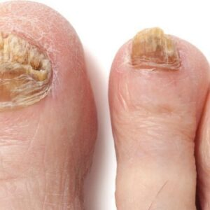 TOENAIL FUNGUS LASER TREATMENT: What You Should Know!