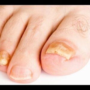 Toenail Fungus Treatment: Home Remedies Known To Cure Toenail Fungus