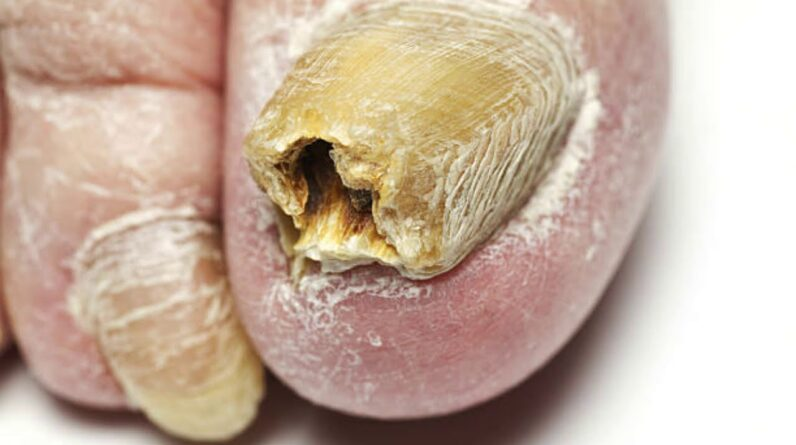 TOENAIL FUNGUS CURE: How To Get Rid of Toenail Fungus Fast and Naturally At Home