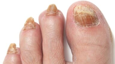 YELLOW TOENAILS!!!  How to GET RID OF THEM NOW!